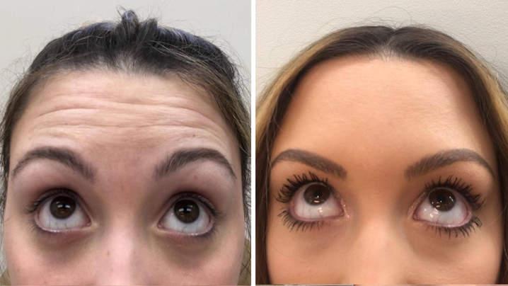 antes y despues de aplicar botox
