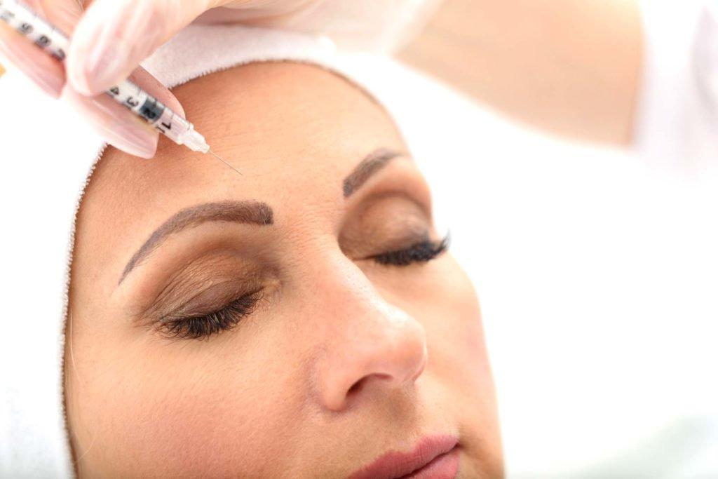 inyeccion subcutanea de botox