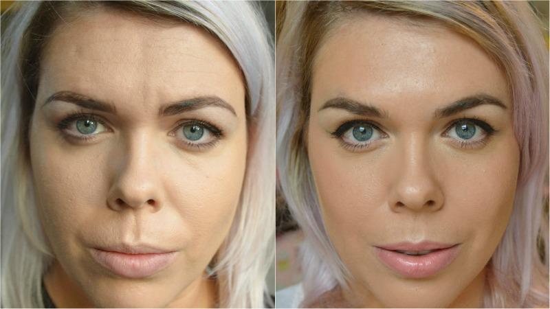 antes y despues de botox en cara