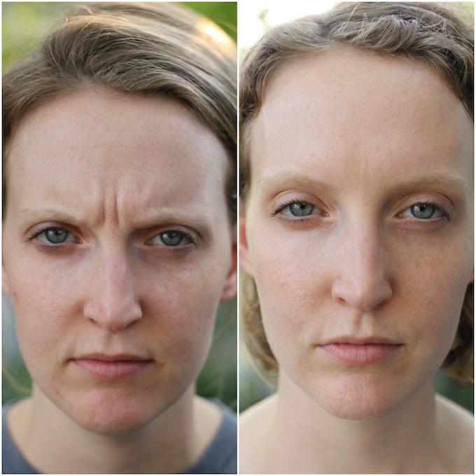 ante y despues de botox en entrecejo