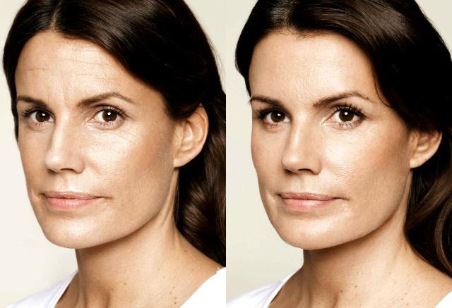antes y despues de botox en la frente