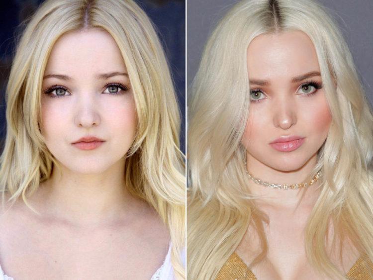antes y despues de relleno de labios
