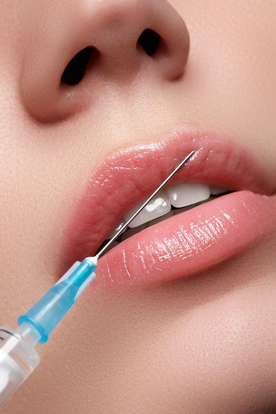 labios inyectados con botox