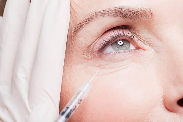 inyeccion de botox en ojos
