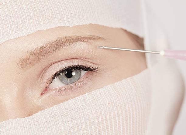 inyeccion de botox cerca del ojo