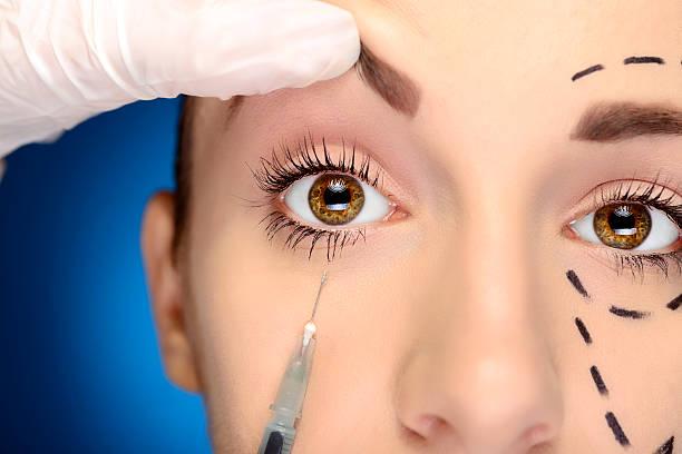 el botox en los ojos