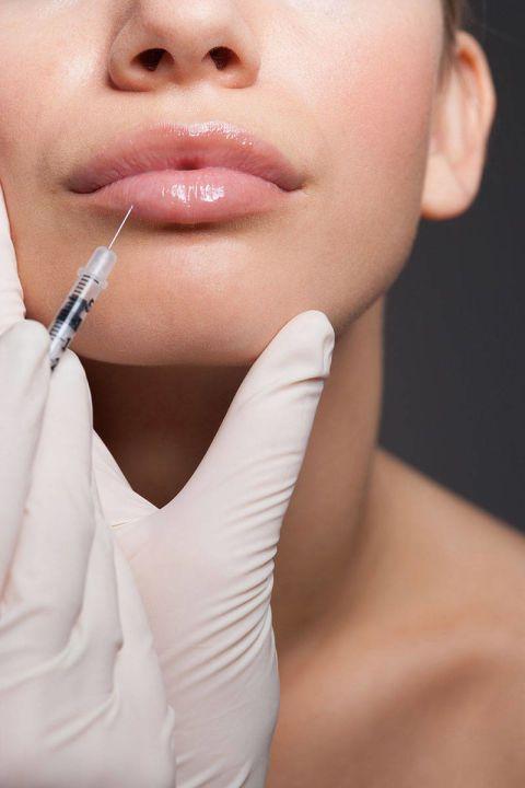 puncion de botox en labios