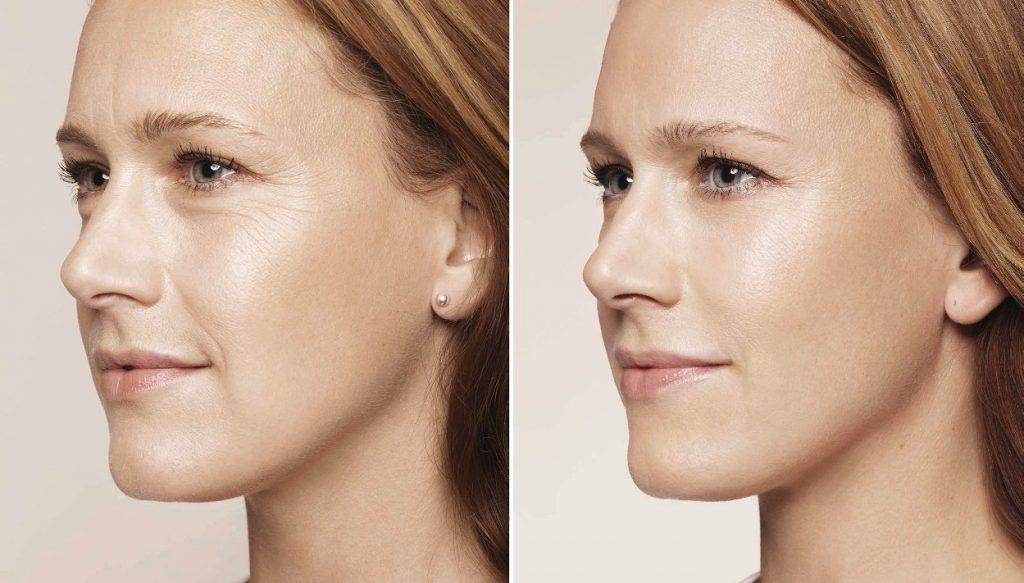 antes y despue del botox